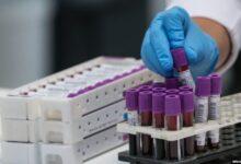Photo of Kroacia pret deri 1000 raste të reja në ditë me koronavirus
