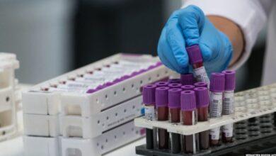 Photo of Tetë viktima dhe 112 raste të reja me koronavirus në 24 orët e fundit