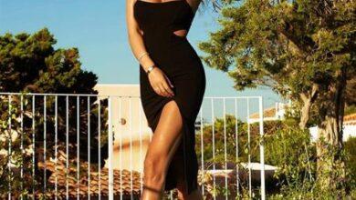 Photo of Lëndohet Angela Martini, modelja tregon si e ka gjendjen