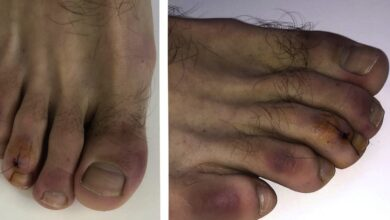 "Photo of ""Gishtat Covid"", simptoma dermatologjike e koronavirusit?"